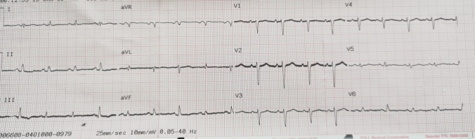 Initial 12 Lead ECG Electrical Alternans.jpg